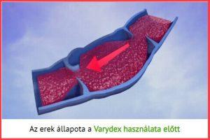 Az erek állapota a Varydex használata előtt